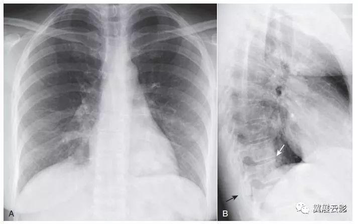 X线侧位胸片的5个关键区域