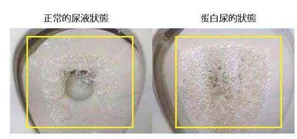 肾病是什么?邯郸肾病医院来揭秘泡沫尿是蛋白尿吗?