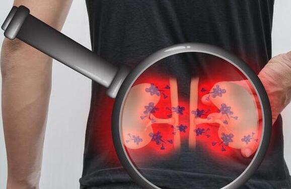 尿毒症是拖出来的?这3个症状出现频繁,那就要注意了